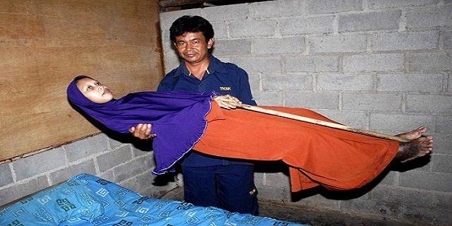 """Tubuhnya Menjadi Kaku, Wanita Sragen Ini Derita Penyakit Langka - IndoPress, Sragen – Wanita asal Sragen, Jawa Tengah ini menderita penyakit langka. Tubuhnya kaku dan tidak dapat bergerak. Wanita bernama Sulami 35 tahun diduga menderita penyakit """"bamboo spine"""" atau """"bambu tulang"""" yang membuat tubuhnya benar-benar menjadi kaku, seperti yang ditulis The Daily Mail. Menurut Departemen Kesehatan Sragen, Sulami menderita gangguan genetik langkah yang disebut Ankylosing"""