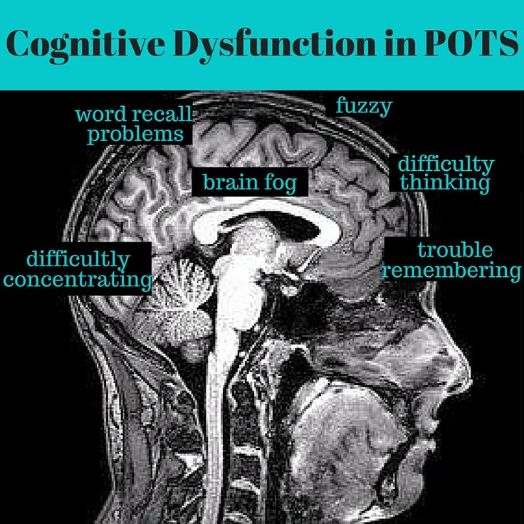 "Cognitive Dysfunction and ""Brain Fog"" in POTS 