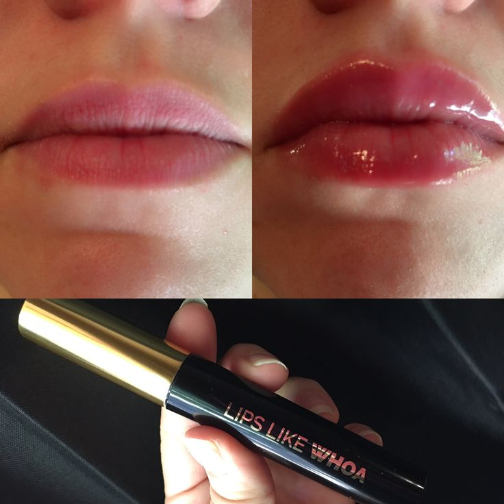 Lips like whoa, lip plumper Left pic normal, right pic with plumper!