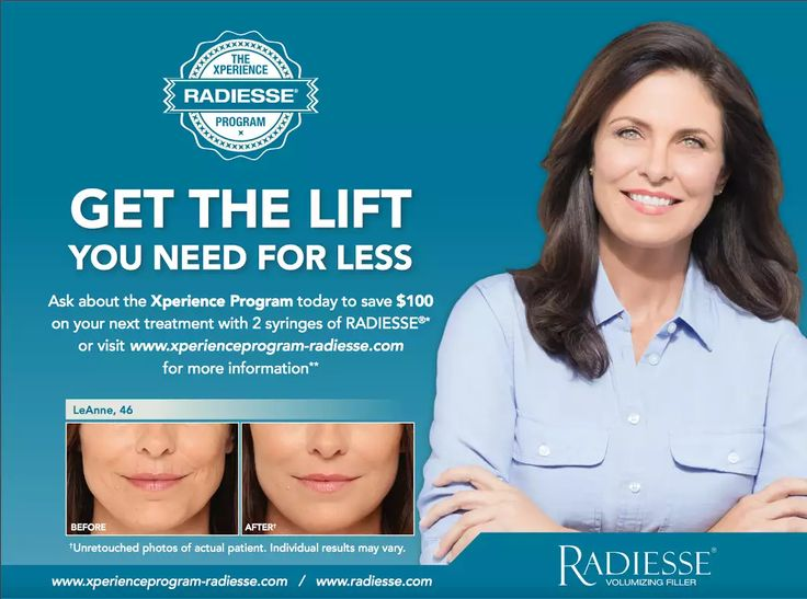 Want to save $100 with your next Radiesse treatment? Sign up for the MERZ Visa Card today! http://xperienceprogram-belotero.com/ Make your appointment with Amara Med Spa soon, this offer ends September 31st!