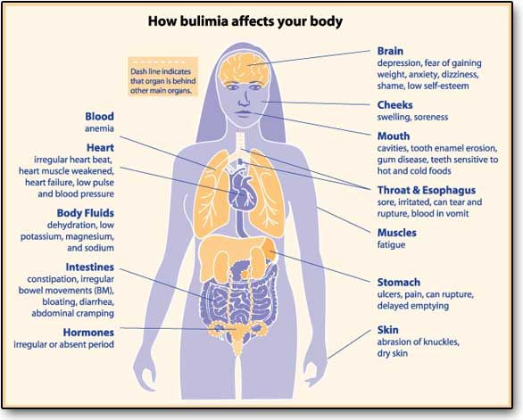 38 best Bulimia Nervosa images on Pinterest | Anorexia ...
