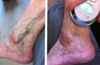 Body Spa Varicose veins results... Simply Amazing