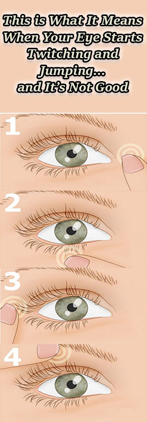 EYE TWITCHING IS USUALLY CAUSED BY FATIGUE, STRESS, EXCESSIVE AMOUNTS OF TOBACCO, ALCOHOL, CAFFEINE AND FEW OTHER FACTORS. BUT EVEN DOCTORS AREN'T SURE ABOUT THE EXACT REASON ON WHAT CAUSES EYE TWITCHING.