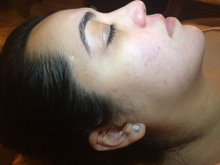 After Dermaplaning, nice and smooth. No vellus hair (peach fuzzies) and no extra dead skin. @xadayspa