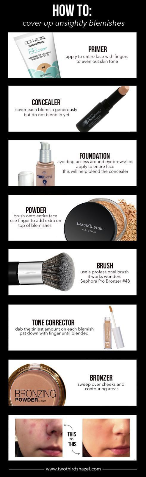 18 Acne Tips and Tricks To Get Rid Of and Cover Up Pimples | Gurl.com