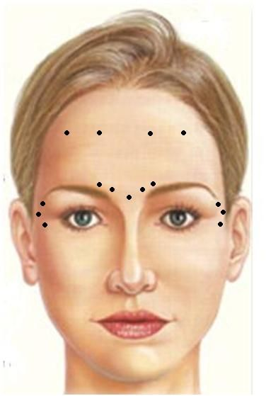 11 best botox::dysport::toxina botolinica images on ... scissors lift wire diagram eyebrow lift diagram #14