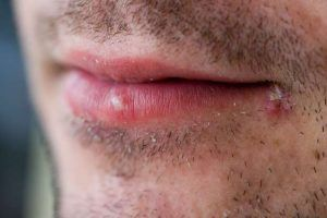 Pimple on Lips- Causes, Treatment and Home-remedies. Learn how to treat pimple around the lips, infected pimples and pimple scars at home.