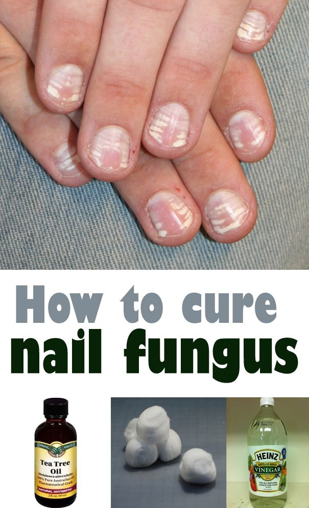 How To Treat Fungus Nails Naturally