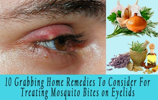 Gum Recession Home Remedies: Mosquito Repellents Home Remedies