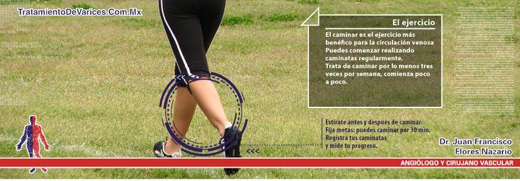 Ejercicios para mejorar la circulación sanguínea de las piernas para pacientes que padecen de enfermedad venosa crónica | www.tratamientodevarices.com.mx Dr. Juan Francisco Flores Nazario, Cirugía vascular y angiología
