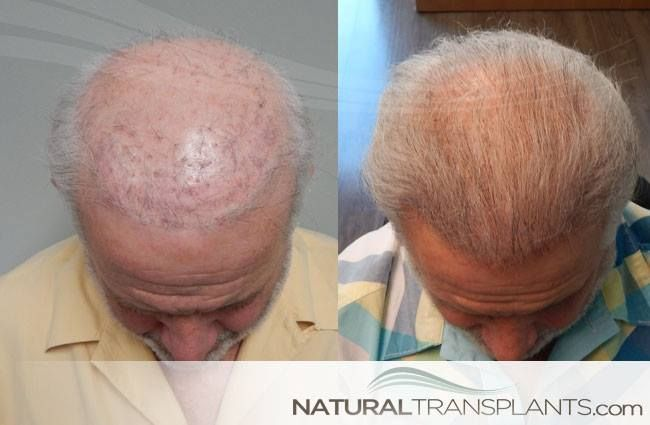 Baldness Cure | Thinning Hair Remedies