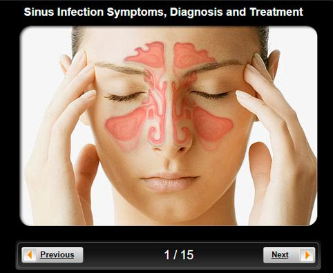 how to get rid of sinus pain in eye