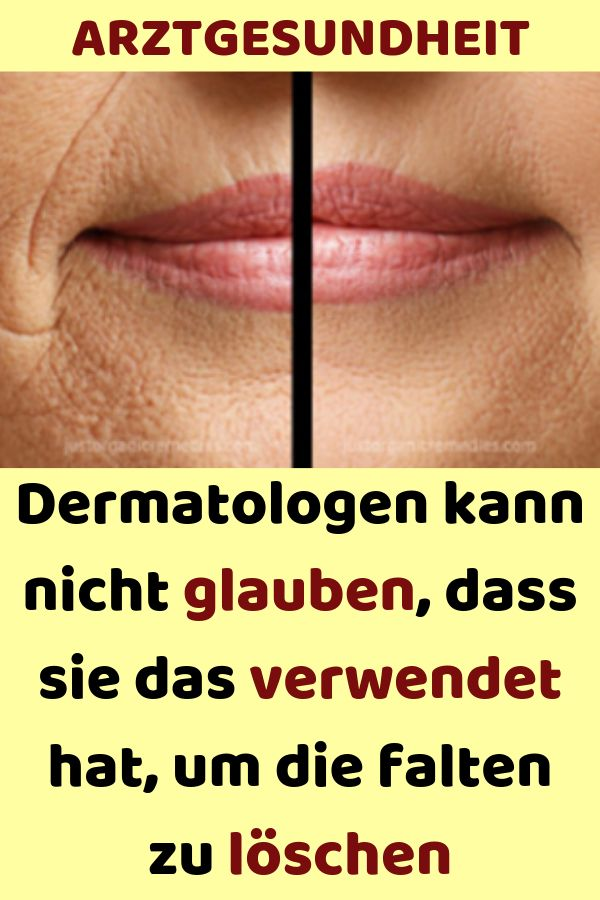 THE DERMATOLOGIST CAN'T BELIEVE THAT THEY WAS USED TO LEAVE THE WRINKLES - Health #can39t #DERMATOLOGIST #Health #LEAVE #WRINKLES