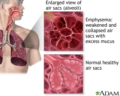 prevention of chronic obstructive pulmonary disease copd Copd (chronic obstructive pulmonary disease) makes it hard for you to breathe the two main types are chronic bronchitis and emphysemathe main cause of copd is long-term exposure to substances that irritate and damage the lungs.