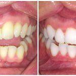 Egy fogorvosi asszisztenstől hallottam: így lehet 5 perc alatt hófehér fogad