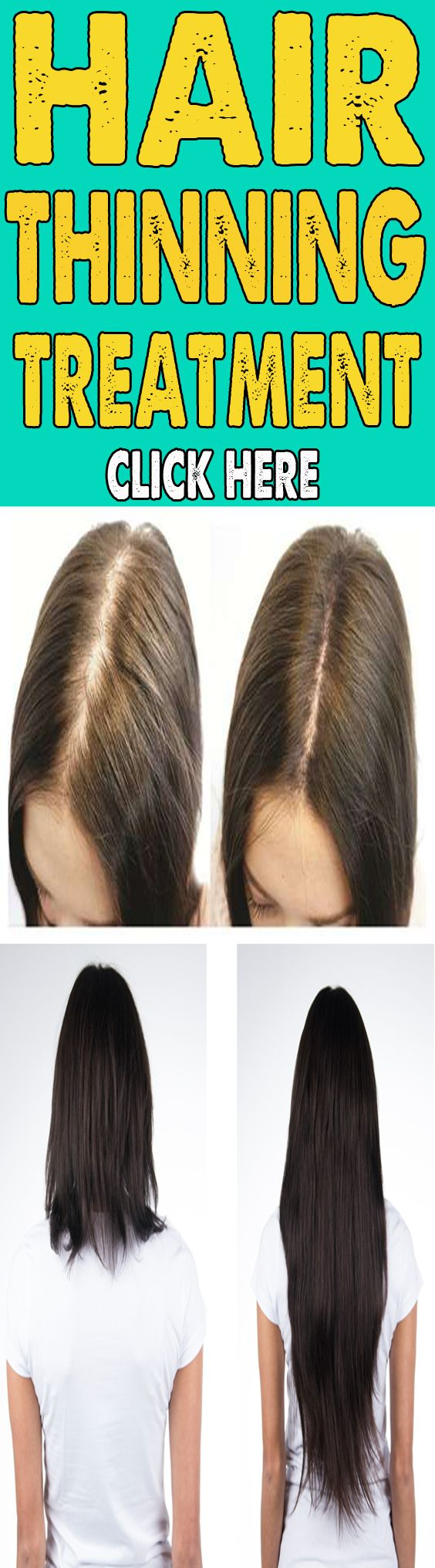 how to stop hair fall quickly