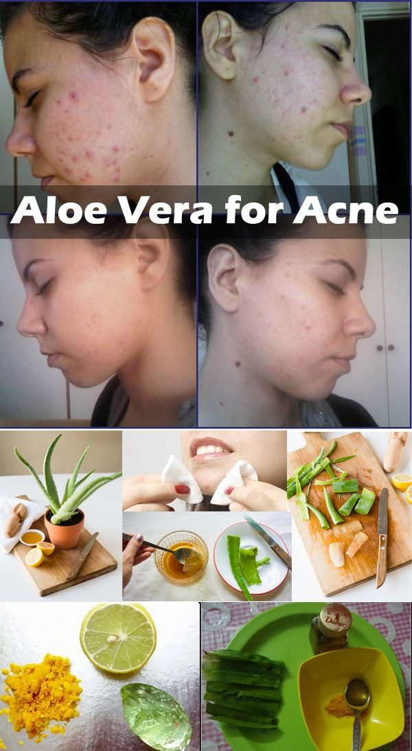 White Face With Aloe Vera