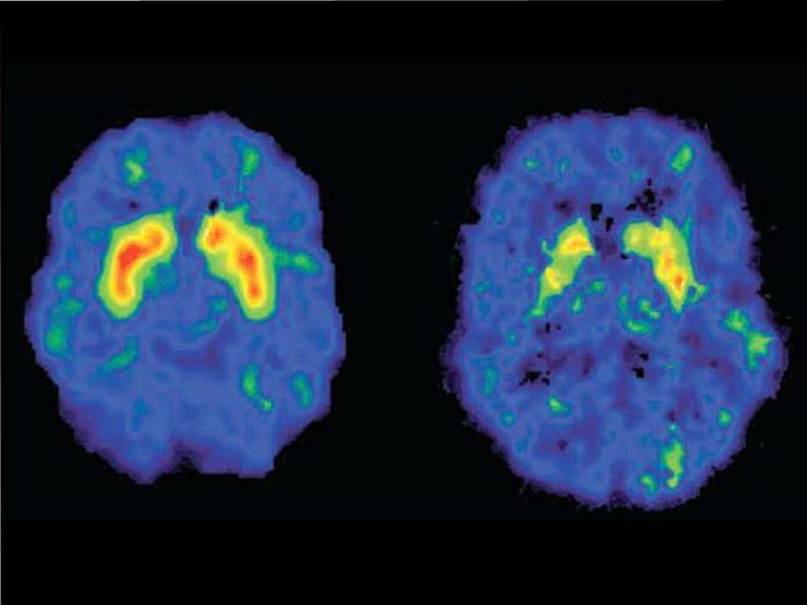 La mayoría de los estupefacientes son capaces de activar las zonas del cerebro del placer y la recompensa, y multiplicar hasta por diez las sensaciones agradables.
