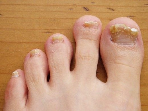 Toe nail fungus can be annoying! Notice what the infected toenail looks like.