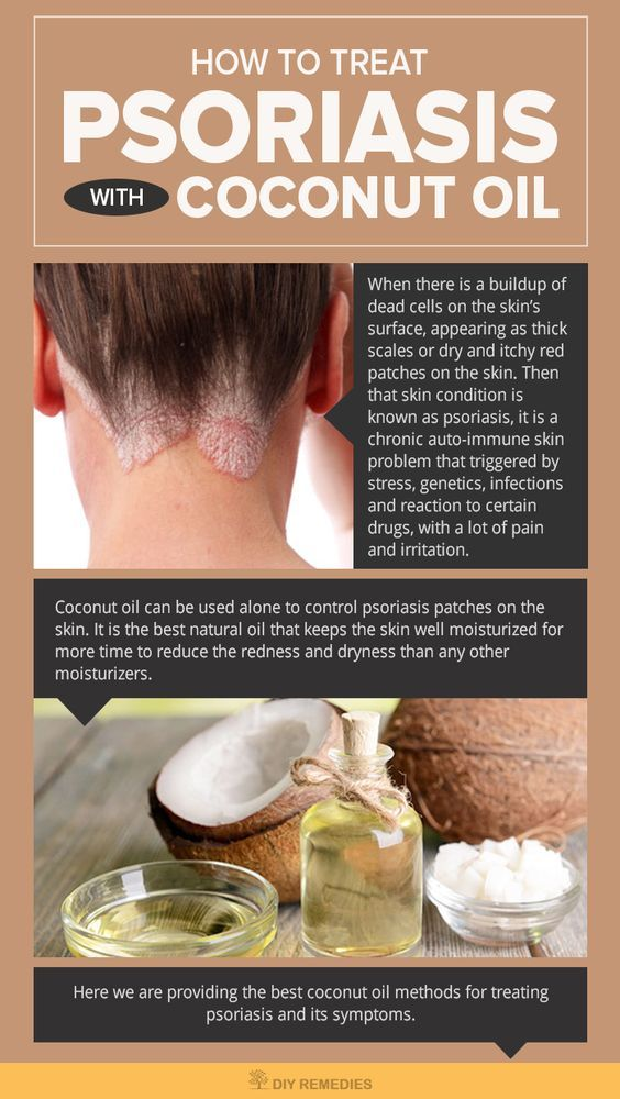 How to Treat Psoriasis with Coconut Oil - DIY Natural Home Remedies. Here are some of the reasons that make you understand why organic coconut oil actually works for treating psoriasis on skin and scalp.