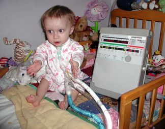 Pediatric Patients On Ventilators In The Home Baby On
