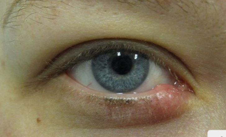 Below we take a look at how to get rid of a stye overnight fast, how long do styes last, what are they, causes, home remedies and treatment. Normally, styes are caused by a strain of bacteria called staphylococcus aureus. A stye on the upper eyelid or lower eye can rob you of public confidence …