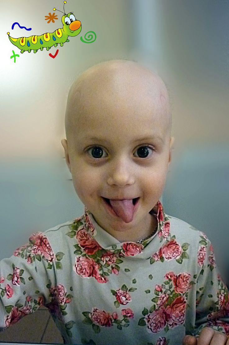 Alopecia totalis in children. Happy smiley face. Provided courtesy of http://www.alopecia-areata.com #alopecia_areata_children