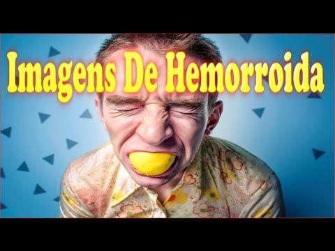 http://tudo-sobre-hemorroida.info-pro.co  Imagens De Hemorroida, Hemorroida, Como Curar A Hemorroida, Começo De Hemorroida, Cura Hemorroida. Não Importa Qual Tipo de Hemorroidas Você Tem ou Quão Severas São as Suas Hemorroidas, Você Pode Começar a Usar Este Poderoso Sistema AGORA MESMO Para Obter um Alívio Imediato e Uma Liberdade Permanente dos Sintomas Relacionados às Hemorroidas!  Inscrever-se para o nosso canal  https://www.youtube.com/watch?v=vPZc1dNTC_8  Imagens De Hemorroida,