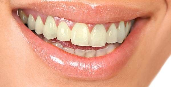 1000 Images About Gold Teeth On Pinterest: 1000+ Images About MAKEUP MORGUE Teeth On Pinterest