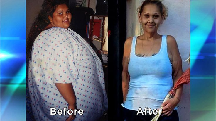 Extreme Weight Loss Skin A woman who lost 500 p...
