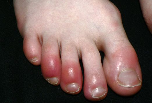 Chilblains, or pernio, characterized by chronic, recurrent vasculitis manifested by red-to-violaceous raised lesions in unprotected extremities (shown).caused by exposure to nonfreezing temperatures and damp conditions.Treatment involves local heat, gentle massage, and lubricants to keep skin supple. Lesions usually resolve in 1-3 weeks. affects young- to middle-aged women and is associated with Raynaud's phenomenon.