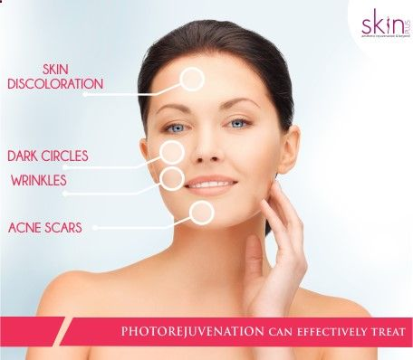 Photo-rejuvenation is a skin treatment that uses intense pulsed light or other thermal or chemical methods to treat some skin conditions and remove wrinkles arising from photoaging. The process induces controlled wounds on the skin, prompting it to heal itself by creating new cells. #skincare #beauty #photorejuvenation #ageing