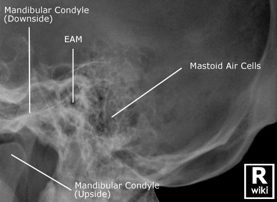 Mastoid - Lateral Oblique | Radiographic Anatomy | Medical ...