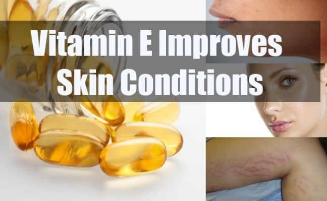 Are you worried about your skin, hair and immunity? If yes, it's time to add vitamin E in your diet.-vitamin e benefits #Skincare #Tips #Makeup #Review #Hair #Mask #Aging #Skin #Care #Face #AntiAging #DIY #Hack