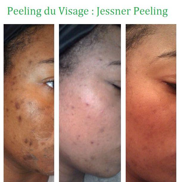 One Les peelings superficiels efficaces en cosmétologie considéré aujourd'hui Jessner Peel (Peel Jessner).Il convient de noter qu'en utilisant la composition spécifique des techniques d'application (plusieurs couches) Procédures résultats peuvent être comparés à l'effet de la peau médiane.  Le principal avantage de cette procédure cosmétique anti-âge est un nettoyage doux et efficace de la peau avec période de récupération minimale.