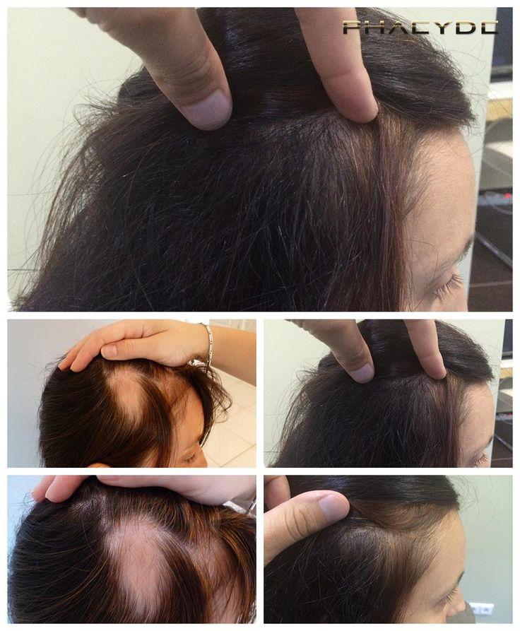 ženski izpadanje & rešitev - PHAEYDE Klinike Reka je močno Proćelav spot, na desni strani glavo. Njeno območje darovalca je bila precej velik, tako ekstrakcijo del ni bil velik problem, vendar je bil implantacijo. Kožo na kraju samem ni bilo dobro. To je to. Rezultat njene lase presaditev. Ona je srečna. Presaditev, ki jih PHAEYDE klinike. http://si.phaeyde.com/presaditev-las