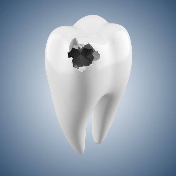 Tooth decay is one of the most common and ignored #dentalproblem. Though it can be treated and even reversed but if ignored it becomes the starting of various other issues like cavity, #badbreath and headache. #ToothDecay can happen to a person of any age Read more...