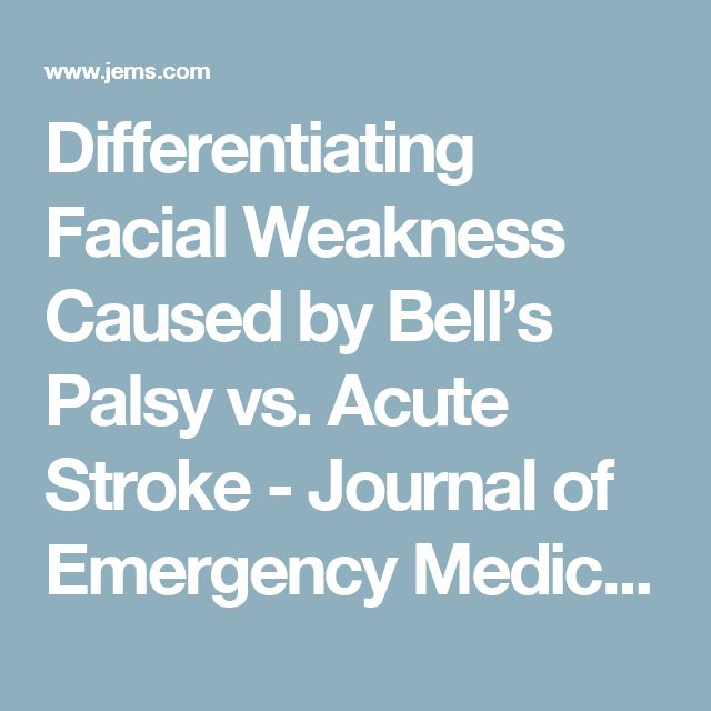 Differentiating Facial Weakness Caused by Bell's Palsy vs. Acute Stroke - Journal of Emergency Medical Services