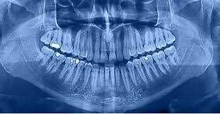 Image result for Cavities Can be Treated Naturally With an Alzheimer's Drug
