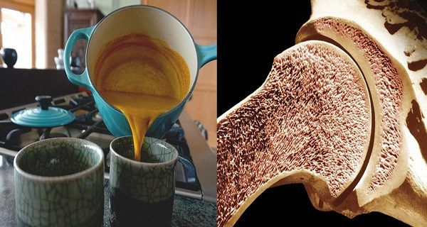 Golden Milk That Will Restore Your Bone Strength: Rejuvenate Your Spine and Joints in Only a Month!  http://www.healthyfitlifetime.com/healthy/golden-milk-will-restore-bone-strength-rejuvenate-spine-joints-month/
