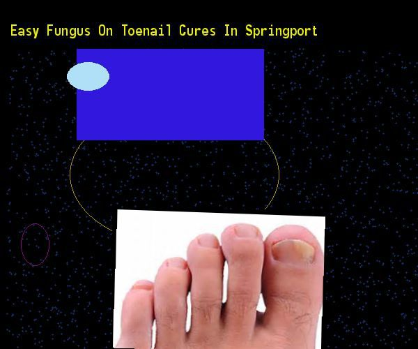 Easy fungus on toenail cures in springport - Nail Fungus Remedy. You have nothing to lose! Visit Site Now