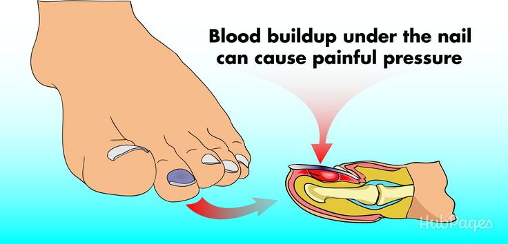 How to Treat a Blood Blister Under the Nail