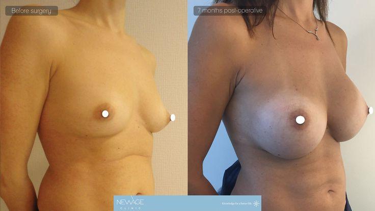 Breast Augmentation Surgery performed by DR. OZGE ERGUN at NEWAGE CLINIC, Istanbul  #mastopexia #PlasticSurgery #earpinning #Aesthetics #beauty #estética #cirugíaplástica #estetica #chirurgiaplastica #Ästhetische #plastischeChirurgie #chirurgieplastique #Schönheit #ринопластика #breast #Busen #brust #الثدي #sein #réductiondepoitrine #Brustverminderung #breastsurgery #BreastAugmentation #brustvergroesserung #유방 #유방확대술 #Bröstförminskning #形成外科 #豊胸 #reduccióndepecho #realself