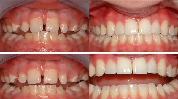 Dental Braces Before And After New Pictures Dental Braces