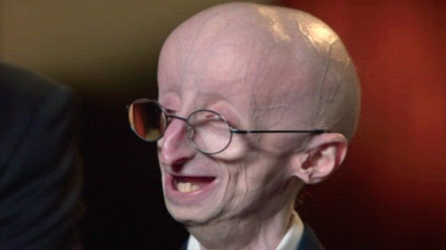 Inspiration to be grateful for every day.  Video: The Triumphant Story of Sam Berns, Progeria and Math