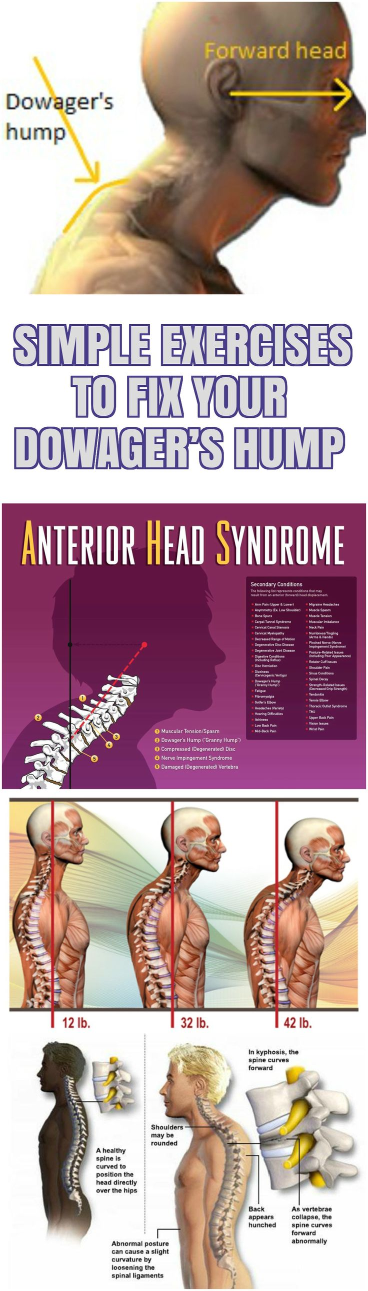 The Dowager's hump is an abnormal outward curvature of the thoracic vertebrae of the upper back. Com...