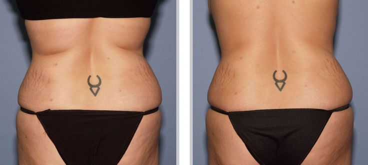 ProLipo Laser Liposuction has come a long way in recent years and EvolvMD is proud to offer patients one of the most advanced, laser assisted liposuction procedures available. Laser assisted liposuction can help those who struggle with stubborn fat and provide a solution to achieve the slimmer, trimmer figure they desire.