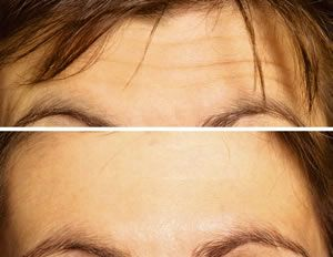 #Botox can achieve a natural look allowing some movement yet reducing lines on your forehead, crow's feet and frown lines 0131 226 6777#botoxedinburgh (B,L)