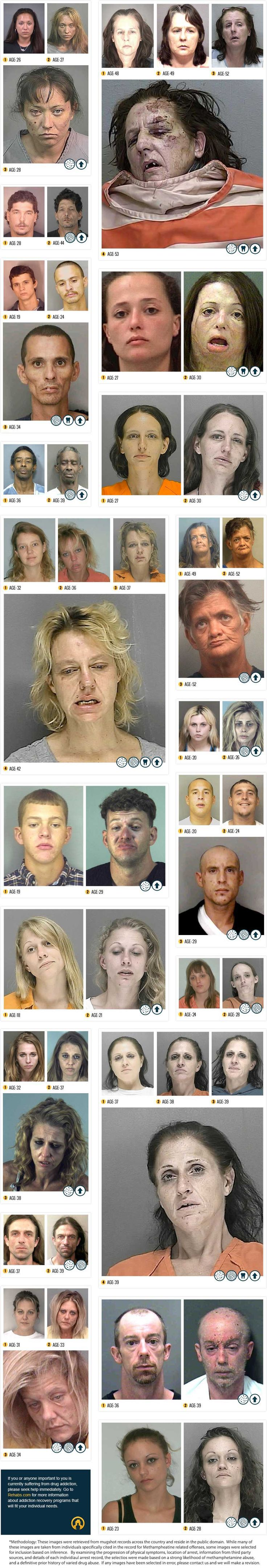 Before & After Drugs: A Real Life Infographic Depicting the Destructive Power of Meth