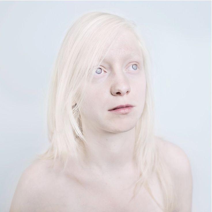 A vöröshajúak hányattatott sorsáról már mindent tudunk , mégis egyetérhetünk abban, hogy az albínóemberekhez képest nem kevés helyzeti előnnyel és jóval több pigmenttel rendelkeznek. Sanne de Wilde fotográfus ezeket az akaratlanul is maszkot viselő, a sztereotípiák metaforájává váló embereket jelenít meg képein....  http://sheabouteverything.blog.hu/2014/09/15/tanzaniaban_meg_mindig_vadasznak_rajuk_azert_mert_albinok
